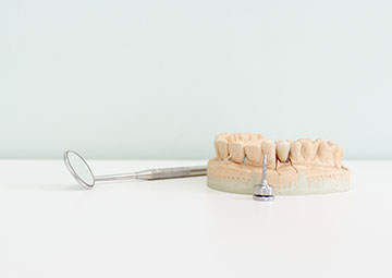 Implantes Dentales Clínica Silos Bormujos