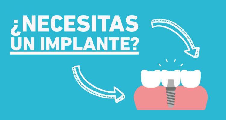 Necesitas un implante dental Clínica Silos Bormujos