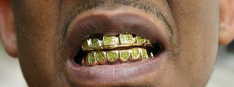 grills-dentales 800*300